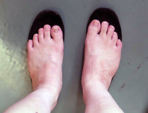 足育を促す「正しい靴の選び方」とは? POINT 1 つま先部分に5ミリの「ゆとり」